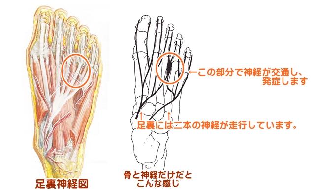 痺れ 小指 足 の